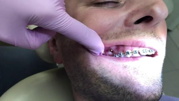 Микроимпланты в ортодонтии больно или нет