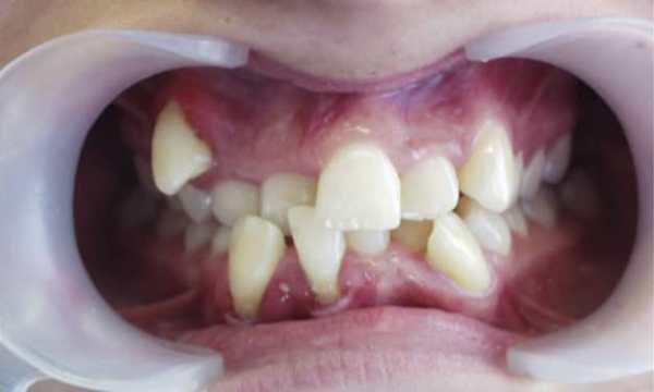 Чем опасна тортоаномалия зубов