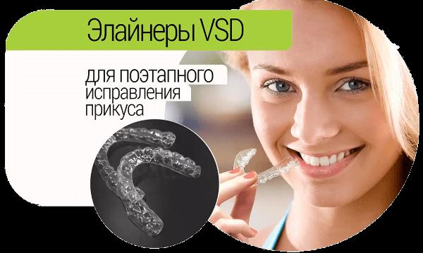 Сроки ношения элайнеров VSD