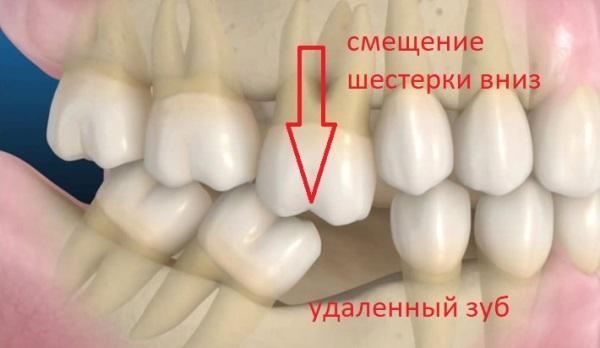 Методы коррекции феномена Попова Годона