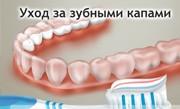 Как ухаживать за капой для зубов
