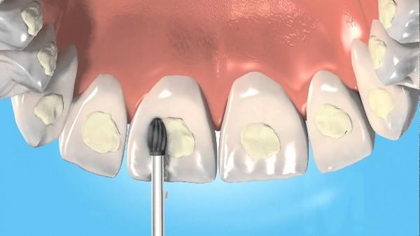 Формы выпуска ортодонтического адгезива