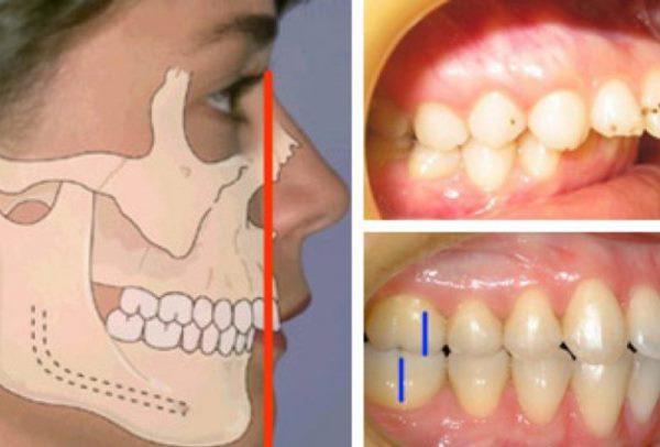 Ретрогнатия верхней челюсти