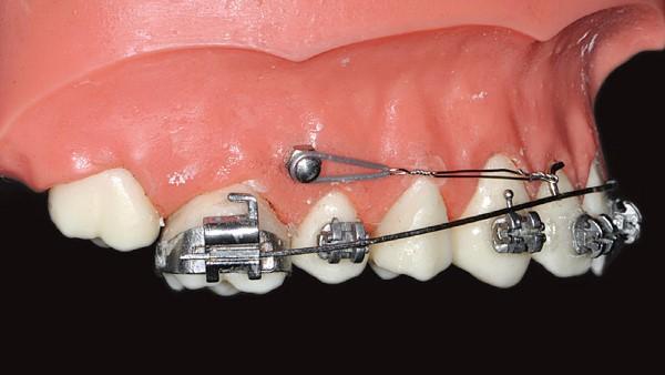 Разновидности анкораж в ортодонтии