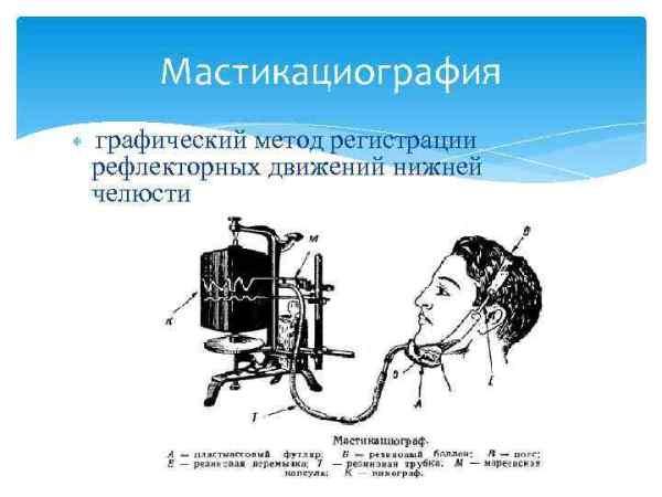 Проведение мастикациография