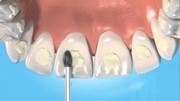 Ортодонтический адгезив виды