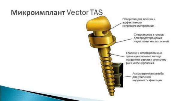 Vector tas микроимпланты